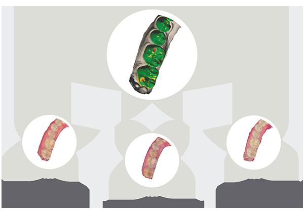compare-via-patient-monitoring-2
